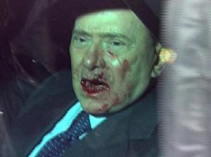 Berlusconi Attacked