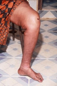 Leg Ulcer Healed