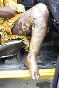 Leg-Ulcer-Before